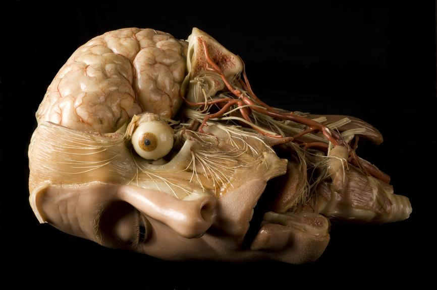 Wax anatomical model of a human head science museum group collection wax anatomical model of a human head ccuart Gallery
